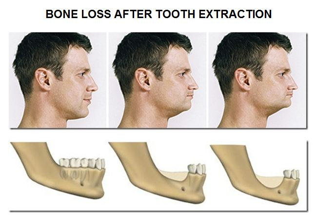 Facial drooping from missing teeth