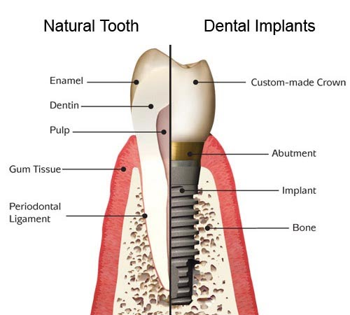 Dental Implant vs Natural Tooth