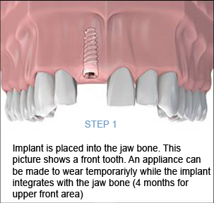 Dental Implant Procedure Step 1