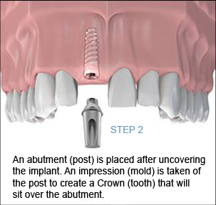 Dental Implant Procedure Step 2