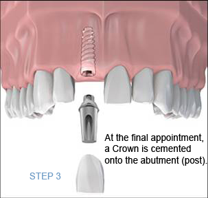 Dental Implant Procedure Step 3