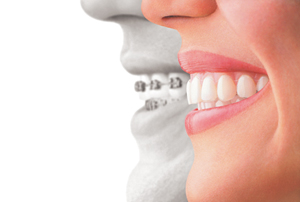 Invisalign offered by Mint Dental of Emerson, NJ