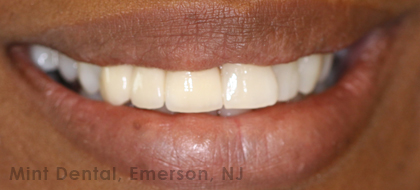 Front teeth gap closed with a Permanent Dental Bridge