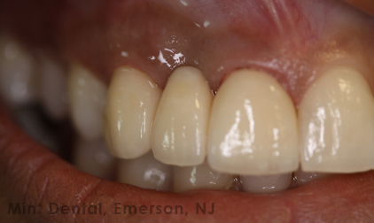All ceramic bridge to replace gap in front teeth