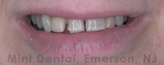 Crowns for cosmetic work to teeth