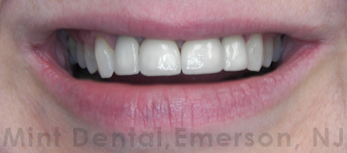 All ceramic crowns for front teeth