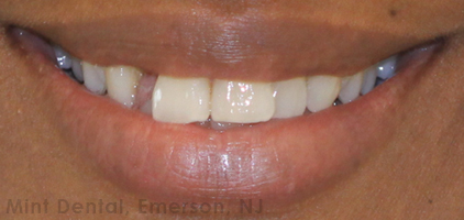 Treatment option for Gap in front teeth